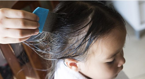 Nits and head lice in children